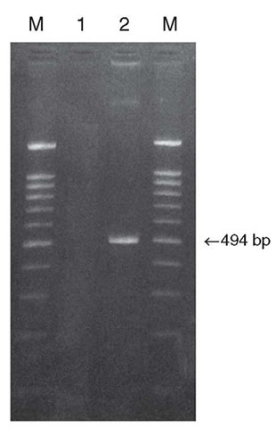 Amplification of human TRADD gene