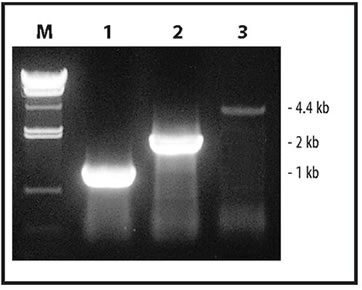 RT-PCR Amplification from Total RNA using the One Step RNA PCR Kit
